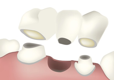 Diagram of a dental bridge from dentist office in Marysville, WA.