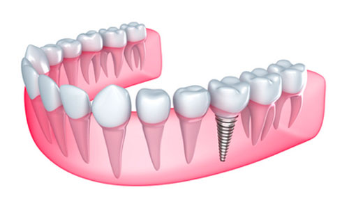 Implant Restoration Diagram at Grove Street Family Dentistry