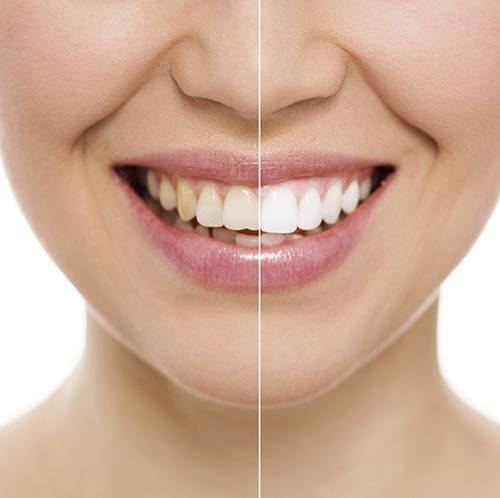 Teeth Whitening at Grove Street Family Dentistry in Marysville, WA